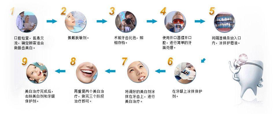 牙齿冷光美白技术